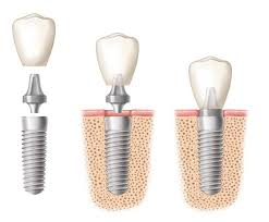 toronto dental implants